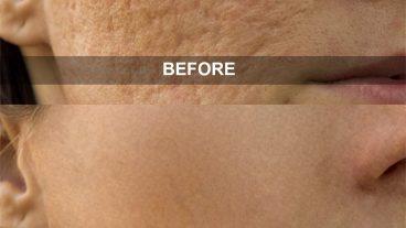 ফটোশপ শিখুন বাংলায় (পর্ব – ৬) কিভাবে ছবি থেকে মুখের দাগ দূর করবেন? (Remove Blemishes & Spots From Face)