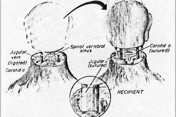 Head Transplant – চিকিৎসাবিজ্ঞানে নতুন দিগন্তের সম্ভবনা